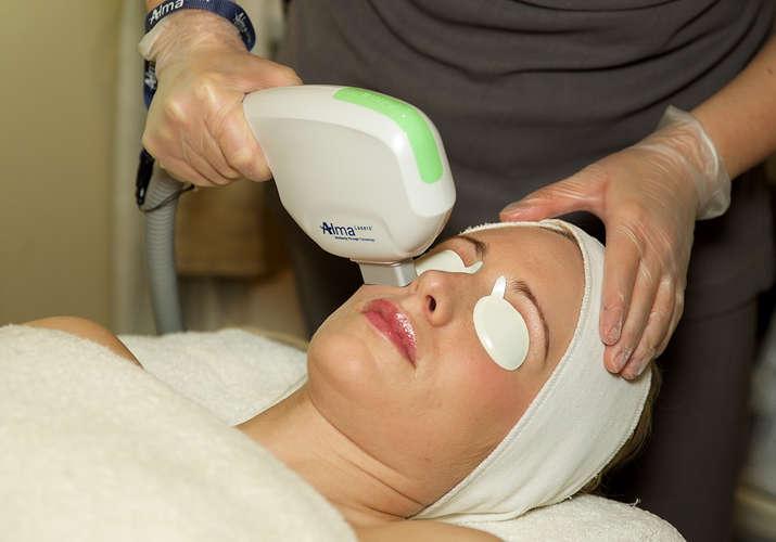 Harmony-AFT-IPL-Dye-VL-Skin-Rejuvenation